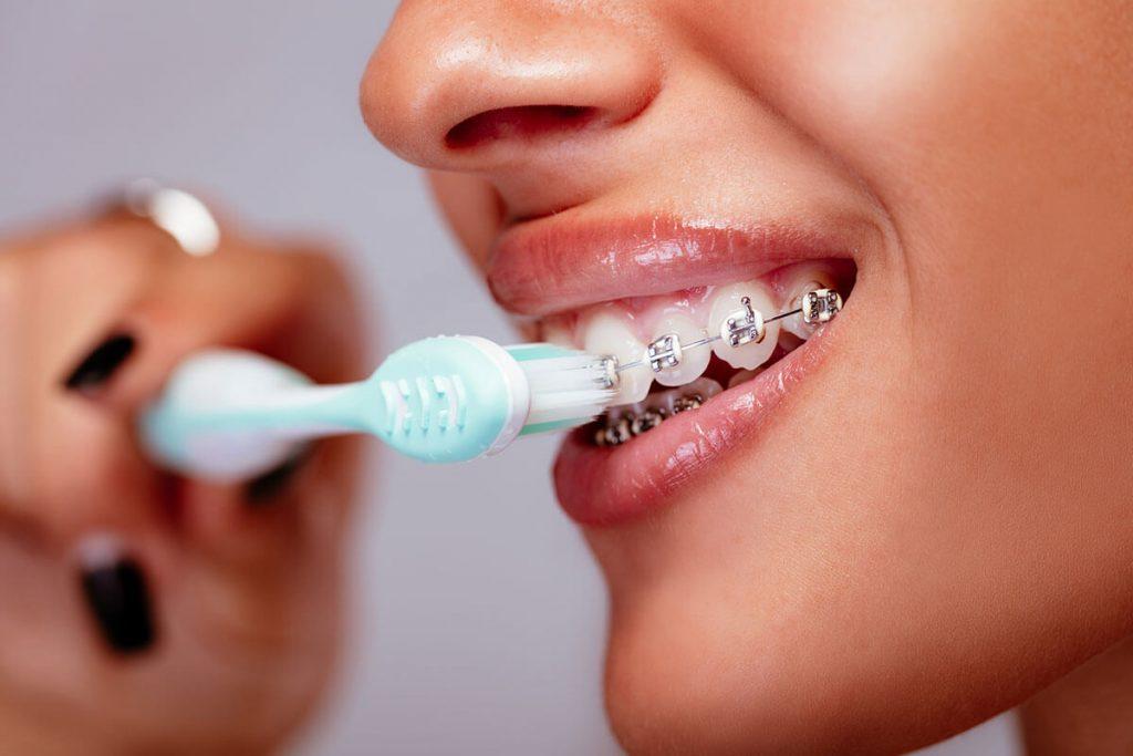 Ortodoncia y el cepillado con brackets