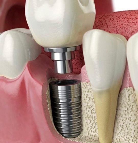 Descripción de Implantes Dentales Ciudad de México