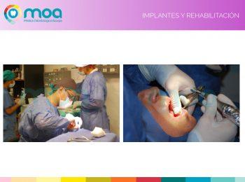 moa-dental-implantes-y-rehabilitación-3