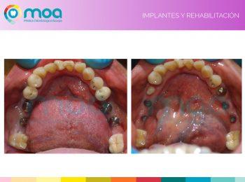 moa-dental-implantes-y-rehabilitación-4