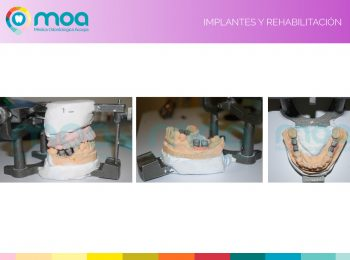 moa-dental-implantes-y-rehabilitación-5