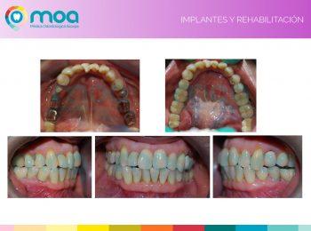 moa-dental-implantes-y-rehabilitacion-6