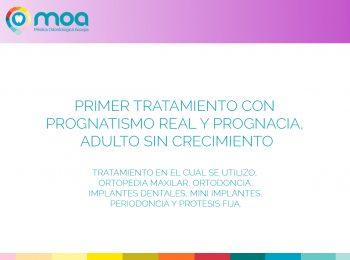 moa-dental-peridoncia-y-protesis-fija-1