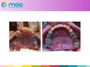 moa-dental-peridoncia-y-protesis-fija-10