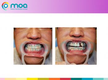 moa-dental-peridoncia-y-protesis-fija-11