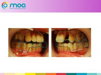 moa-dental-peridoncia-y-protesis-fija-12