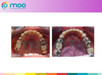 moa-dental-peridoncia-y-protesis-fija-13