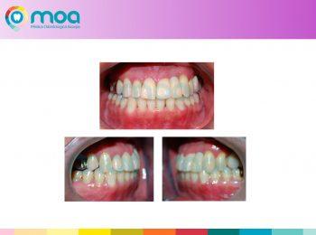 moa-dental-peridoncia-y-protesis-fija-14
