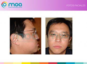 moa-dental-peridoncia-y-protesis-fija-2