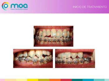 moa-dental-peridoncia-y-protesis-fija-3