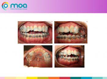 moa-dental-peridoncia-y-protesis-fija-4