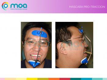 moa-dental-peridoncia-y-protesis-fija-5