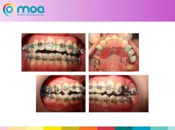 moa-dental-peridoncia-y-protesis-fija-6