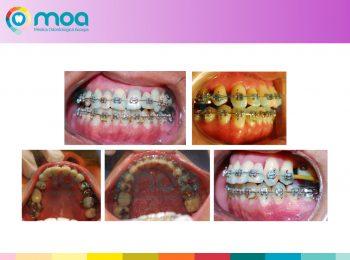 moa-dental-peridoncia-y-protesis-fija-7