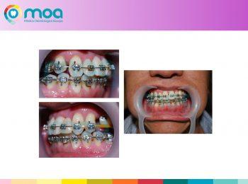 moa-dental-peridoncia-y-protesis-fija-8