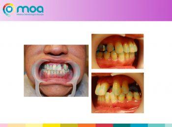 moa-dental-peridoncia-y-protesis-fija-9