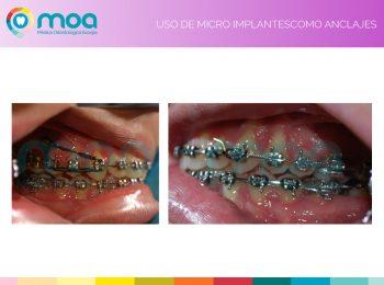 moa-dental-prognatismo-mandibular-11