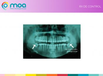moa-dental-prognatismo-mandibular-12