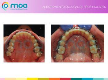 moa-dental-prognatismo-mandibular-13