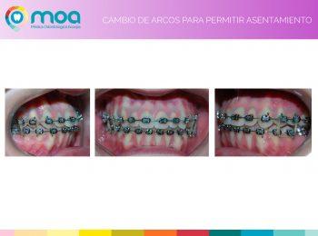 moa-dental-prognatismo-mandibular-14