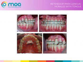 moa-dental-prognatismo-mandibular-15