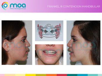 moa-dental-prognatismo-mandibular-16