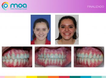moa-dental-prognatismo-mandibular-17