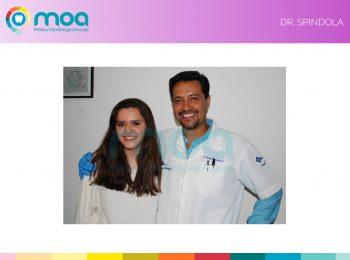 moa-dental-prognatismo-mandibular-18