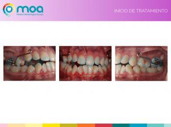 moa-dental-prognatismo-mandibular-3