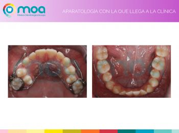 moa-dental-prognatismo-mandibular-4