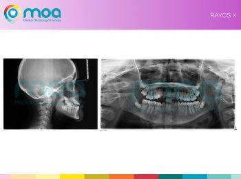 moa-dental-prognatismo-mandibular-5