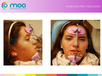 moa-dental-prognatismo-mandibular-6