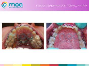 moa-dental-prognatismo-mandibular-7