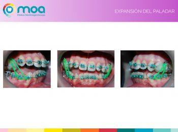 moa-dental-prognatismo-mandibular-8