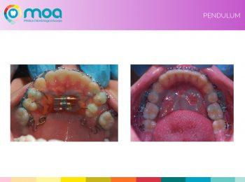 moa-dental-prognatismo-mandibular-9