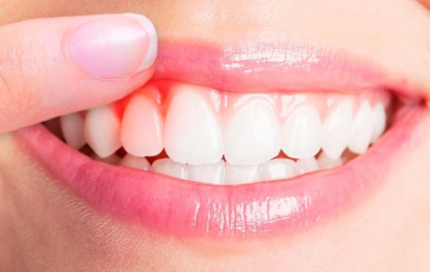 Periodoncia para enfermedades de encías, tratamiento en MOA dental