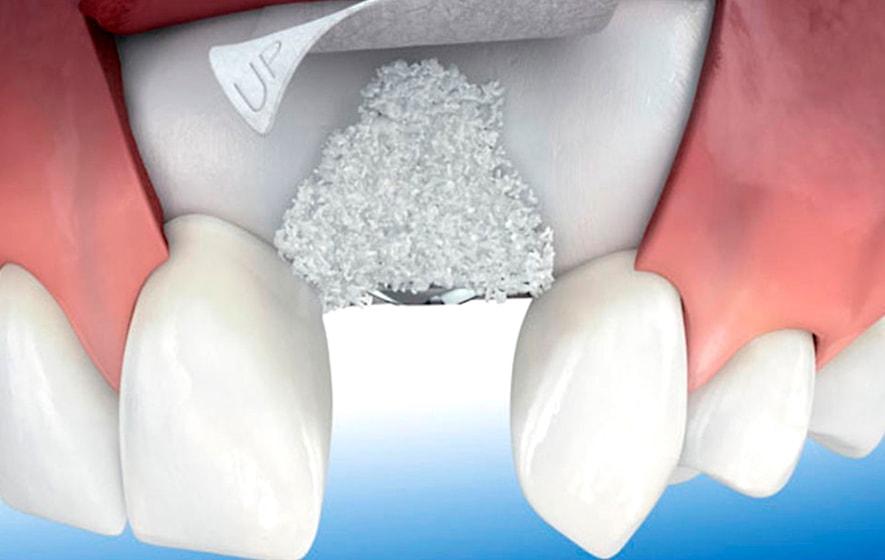 Regeneración tisular en MOA Dental